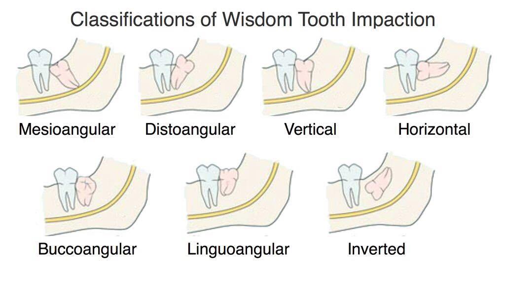 Wisdom Tooth Disimpaction